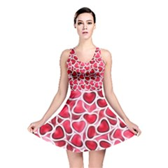 Candy Hearts Reversible Skater Dress