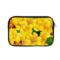 Springs First Arrivals Apple Macbook Pro 13  Zipper Case