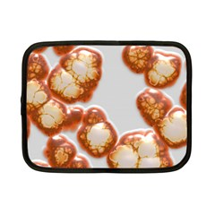 Abstract Texture A Completely Seamless Tile Able Background Design Netbook Case (small)