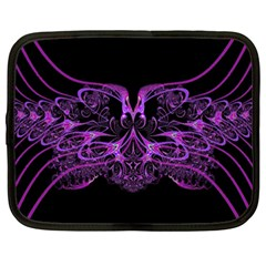Beautiful Pink Lovely Image In Pink On Black Netbook Case (XXL)
