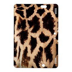 Yellow And Brown Spots On Giraffe Skin Texture Kindle Fire Hdx 8 9  Hardshell Case