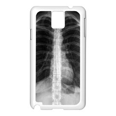 X Ray Samsung Galaxy Note 3 N9005 Case (White)