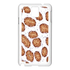 Formalin Paraffin Human Stomach Stained Bacteria Brown Samsung Galaxy Note 3 N9005 Case (white)