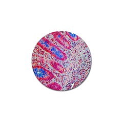 Histology Inc Histo Logistics Incorporated Alcian Blue Golf Ball Marker (10 Pack)