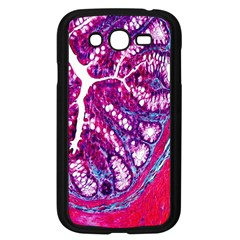 Histology Inc Histo Logistics Incorporated Masson s Trichrome Three Colour Staining Samsung Galaxy Grand Duos I9082 Case (black)
