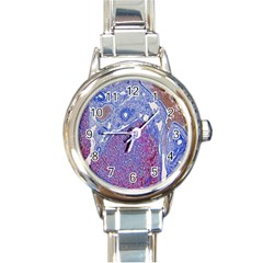 Histology Inc Histo Logistics Incorporated Human Liver Rhodanine Stain Copper Round Italian Charm Watch