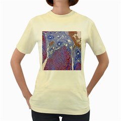 Histology Inc Histo Logistics Incorporated Human Liver Rhodanine Stain Copper Women s Yellow T Shirt