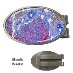 Histology Inc Histo Logistics Incorporated Human Liver Rhodanine Stain Copper Money Clips (oval)