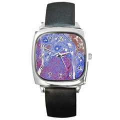 Histology Inc Histo Logistics Incorporated Human Liver Rhodanine Stain Copper Square Metal Watch