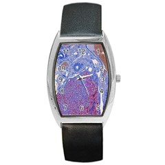 Histology Inc Histo Logistics Incorporated Human Liver Rhodanine Stain Copper Barrel Style Metal Watch