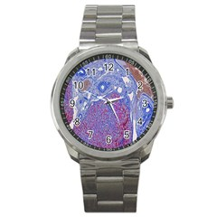Histology Inc Histo Logistics Incorporated Human Liver Rhodanine Stain Copper Sport Metal Watch