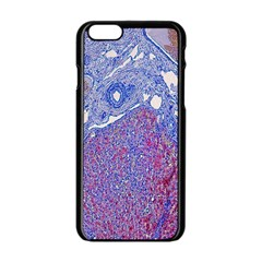 Histology Inc Histo Logistics Incorporated Human Liver Rhodanine Stain Copper Apple Iphone 6/6s Black Enamel Case