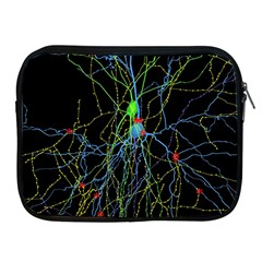Synaptic Connections Between Pyramida Neurons And Gabaergic Interneurons Were Labeled Biotin During Apple Ipad 2/3/4 Zipper Cases