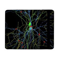Synaptic Connections Between Pyramida Neurons And Gabaergic Interneurons Were Labeled Biotin During Samsung Galaxy Tab Pro 8 4  Flip Case