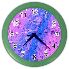 The Luxol Fast Blue Myelin Stain Color Wall Clocks