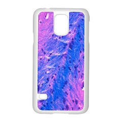 The Luxol Fast Blue Myelin Stain Samsung Galaxy S5 Case (white)