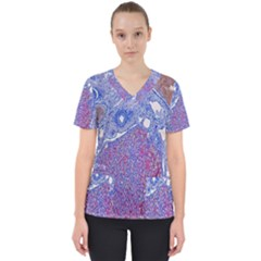 Histology Inc Histo Logistics Incorporated Human Liver Rhodanine Stain Copper Scrub Top