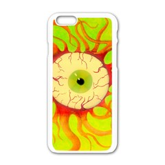 Scleral Hemorrhage Apple Iphone 6/6s White Enamel Case by circuitboardloincloth