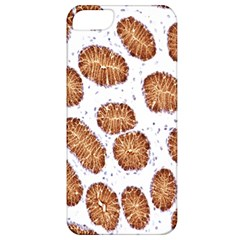 Formalin Paraffin Human Stomach Stained Bacteria Brown Apple Iphone 5 Classic Hardshell Case by Mariart
