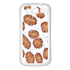 Formalin Paraffin Human Stomach Stained Bacteria Brown Samsung Galaxy S3 Back Case (white) by Mariart
