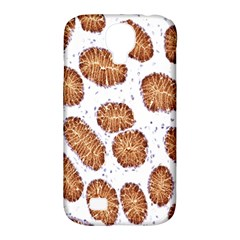 Formalin Paraffin Human Stomach Stained Bacteria Brown Samsung Galaxy S4 Classic Hardshell Case (pc+silicone) by Mariart