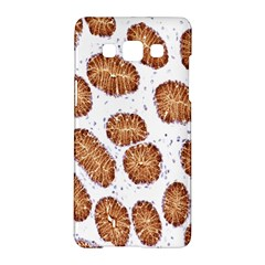 Formalin Paraffin Human Stomach Stained Bacteria Brown Samsung Galaxy A5 Hardshell Case  by Mariart