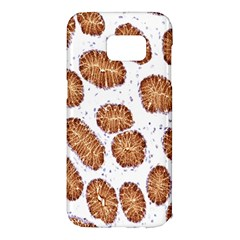Formalin Paraffin Human Stomach Stained Bacteria Brown Samsung Galaxy S7 Edge Hardshell Case by Mariart