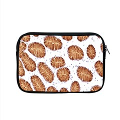 Formalin Paraffin Human Stomach Stained Bacteria Brown Apple Macbook Pro 15  Zipper Case by Mariart
