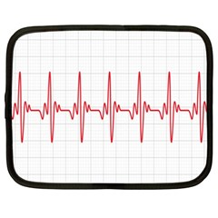 Cardiogram Vary Heart Rate Perform Line Red Plaid Wave Waves Chevron Netbook Case (xxl)  by Mariart