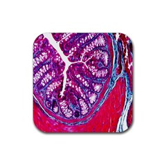 Histology Inc Histo Logistics Incorporated Masson s Trichrome Three Colour Staining Rubber Square Coaster (4 Pack)  by Mariart