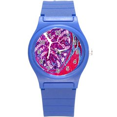 Histology Inc Histo Logistics Incorporated Masson s Trichrome Three Colour Staining Round Plastic Sport Watch (s) by Mariart