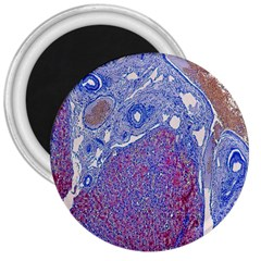 Histology Inc Histo Logistics Incorporated Human Liver Rhodanine Stain Copper 3  Magnets by Mariart