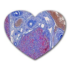 Histology Inc Histo Logistics Incorporated Human Liver Rhodanine Stain Copper Heart Mousepads by Mariart