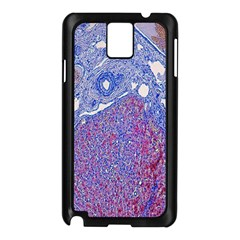 Histology Inc Histo Logistics Incorporated Human Liver Rhodanine Stain Copper Samsung Galaxy Note 3 N9005 Case (black) by Mariart