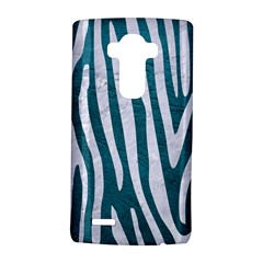 Skin4 White Marble & Teal Leather (r) Lg G4 Hardshell Case by trendistuff